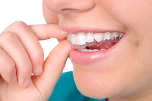 what is Invisalign invisible braces in Salt Lake City and Sandy Utah