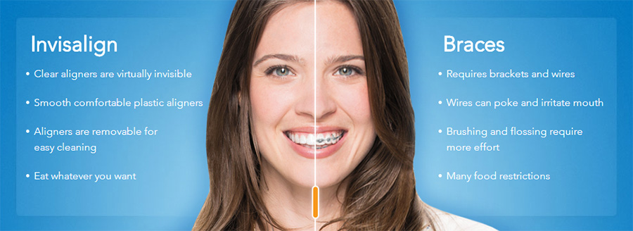 invisalign vs braces and metal braces with a Murray dentist in Salt Lake City and Sandy Utah