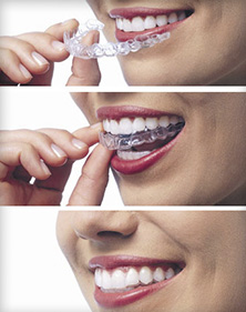 how does Invisalign work to straighten teeth with a Salt Lake City dentist in Murray and Sandy Utah